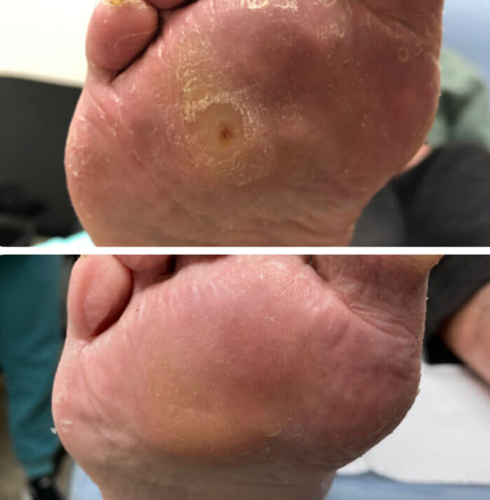 Leveva Injection Before And After Photo